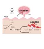昭和大学らの共同研究グループが出血性膀胱炎の新たな発症機構を解明