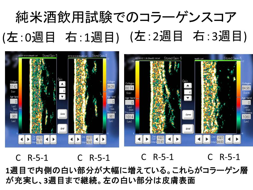 金沢工業大学尾関健二研究室と株式会社車多酒造の研究グループが、世界初、日本酒の旨味成分「α-EG」が皮膚真皮層のコラーゲン量を増やすことを学術的に実証