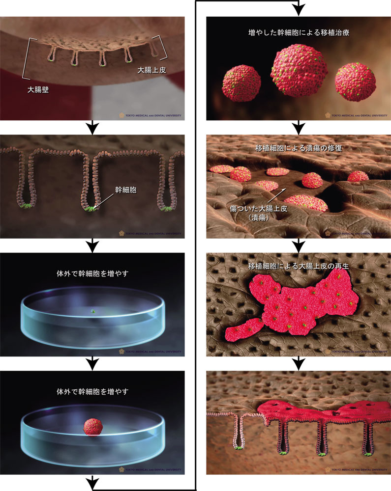 東京医科歯科大学大学院・消化器病態学分野の渡辺守教授らが、1個の幹細胞から、傷ついた大腸の再生に成功