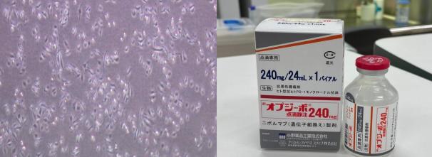 世界初! 肝機能不良の進行肝細胞がん患者に対する 免疫チェックポイント阻害剤「オプジーボ」の有効性・安全性を証明